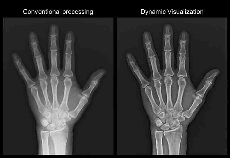 digital xray - conventional processing vs dynamic visualization in panvel & Kharghar navi mumbai