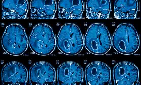 mri reports used in diagnosis joint, heart, brain tumors etc. in panvel & kharghar navimumbai